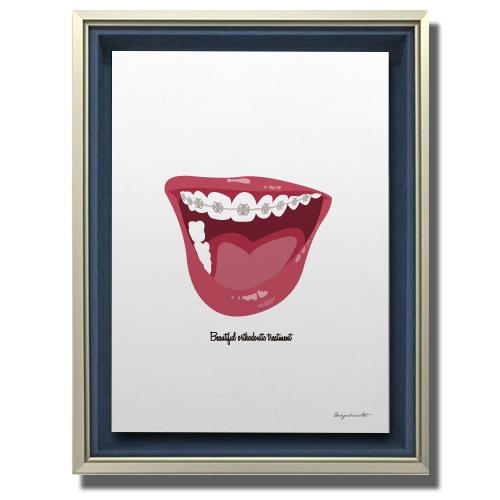 Orthodontic キャンバスプリント(B3サイズ)・立体額入り