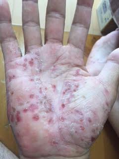 掌蹠膿疱症のお問い合わせがあったので、そういえば!という事で、再掲します。