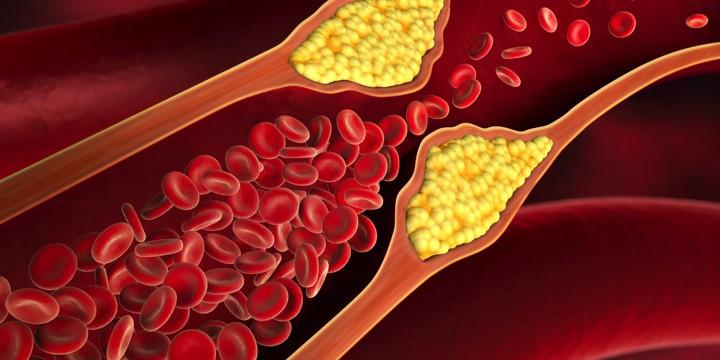 血管力の強化で突然死を防ぐ