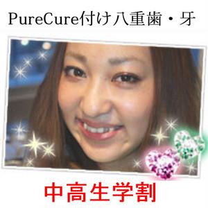 【学割】付け八重歯施術チケット(1本)
