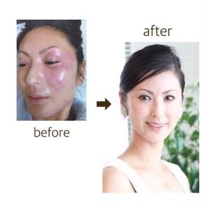 ★顔に塗るはちみつ★アピココBEEビューティーセラム (200g)簡単混ぜて塗るだけ