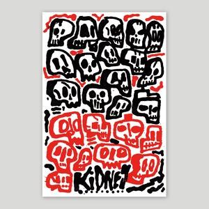 Rob Kidney/Skulls
