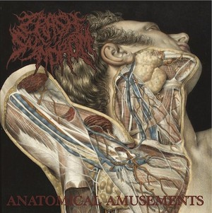 CRASH SYNDROM/Anatomical Amusements