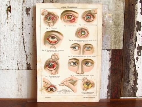 ドイツ アンティーク・医療系リトグラフ/目の病気(眼科) ドイツの人体/医療系