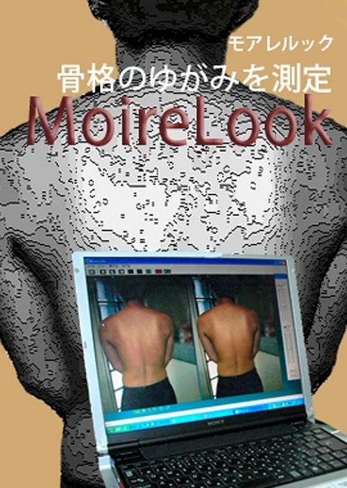 モアレ式体型観察装置 モアレルック(税込)