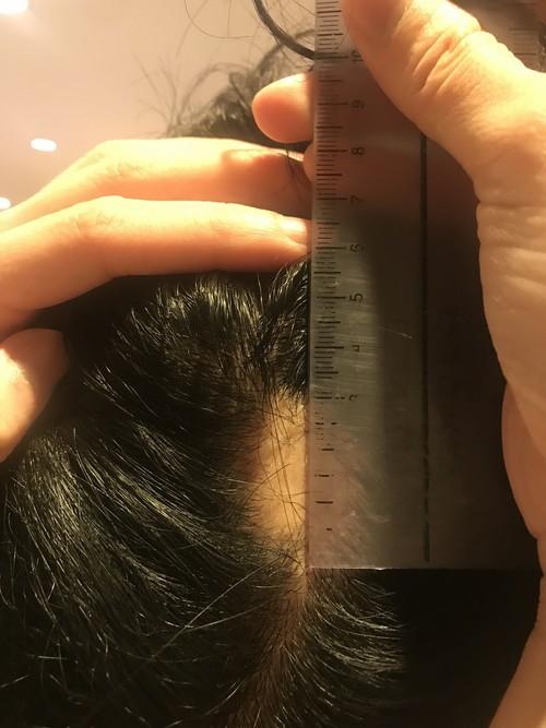 円形脱毛部に触る権利