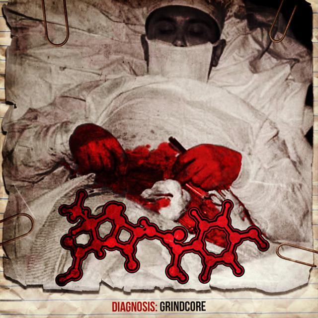 AMOCLEN『Diagnosis: Grindcore』CD