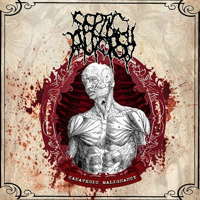 SEPTIC AUTOPSY『Cadaveric Malignancy』CD